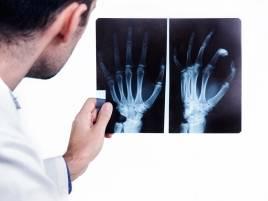 Traumatología y Cirugía Ortopédica