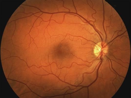 Degeneració macular associada a l'edat