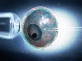 Inyección intracitoplasmática de espermatozoide