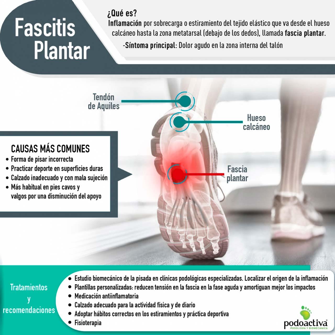 La fascitis plantar - Que es. Causas más comunes y tratamientos y recomendaciones