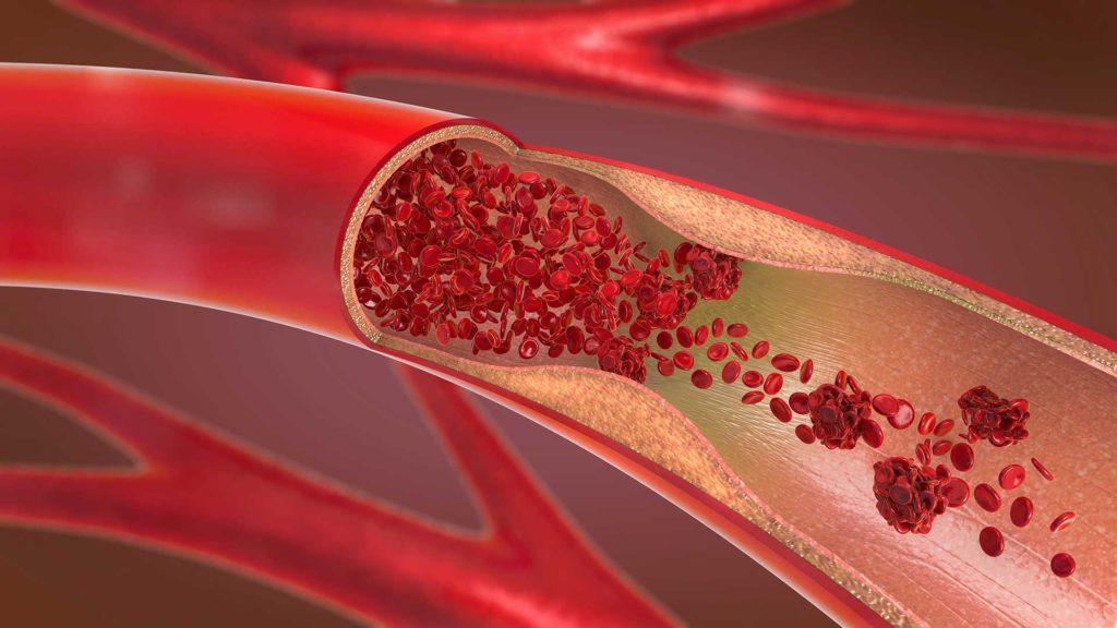 Angiología y Cirugía Vascular